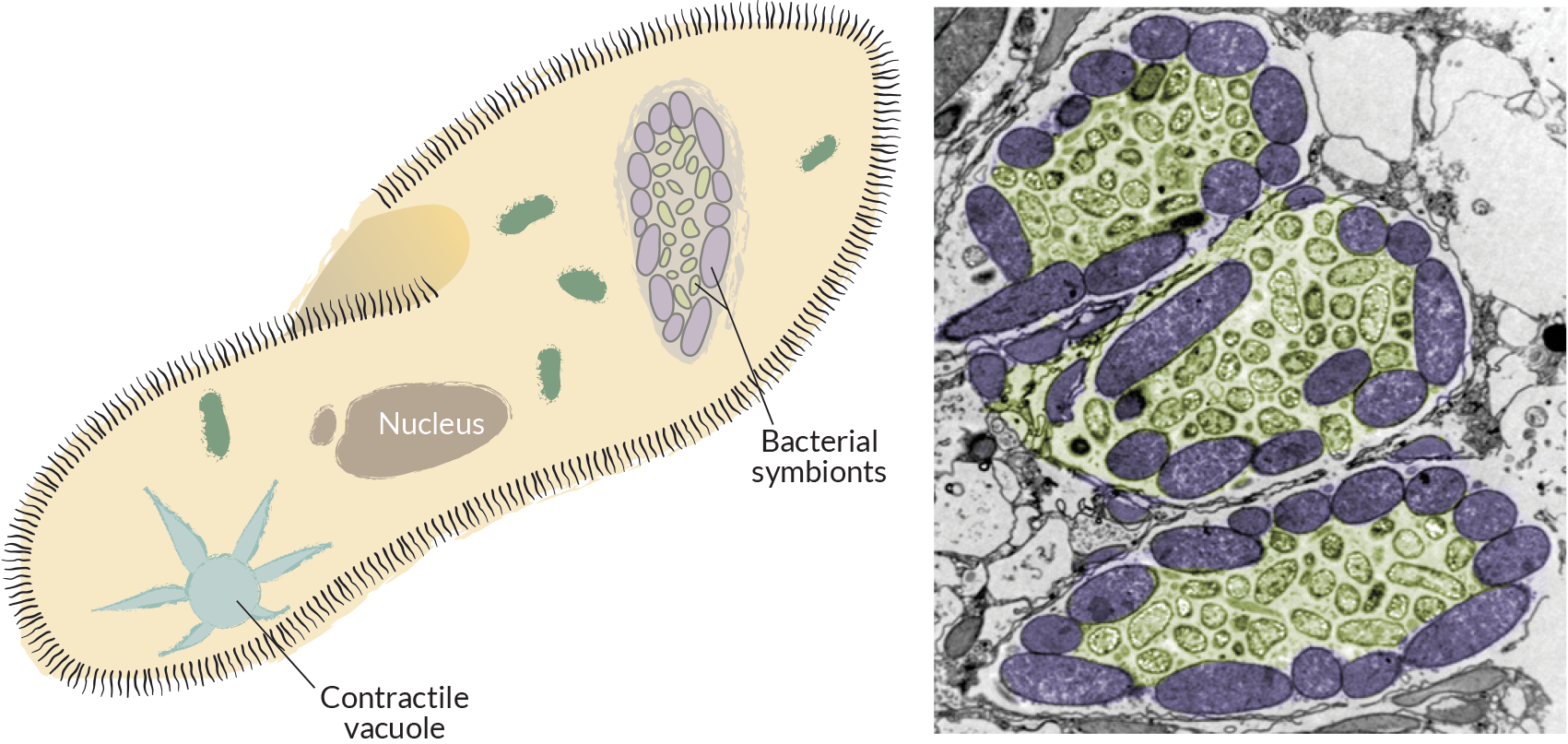 (Left) Diagram of a ciliate that hosts different kinds of bacteria in its cell. (Right) Colorized electron micrograph showing compartments inside a ciliate where different kinds of bacteria live. (Illustration by Jack Cook, photo by Virginia Edgcomb, Woods Hole Oceanographic Institution)