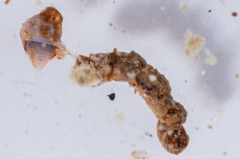 A sample collected from TZEx includes a rare, intact fecal pellet, most likely from a fish. A pellet like this would likely sink very quickly, carrying carbon with it. Photo by David Liittschwager.