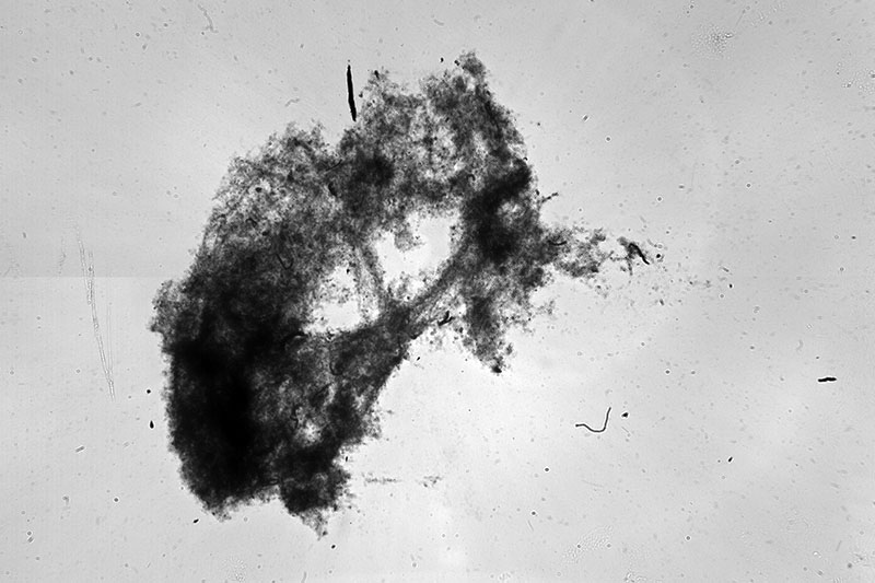 Heidi Sosik's shadowgraph imaging system captures an image of marine snow aggregate (roughly 5 cm across) carrying carbon and other nutrients deep into the ocean.